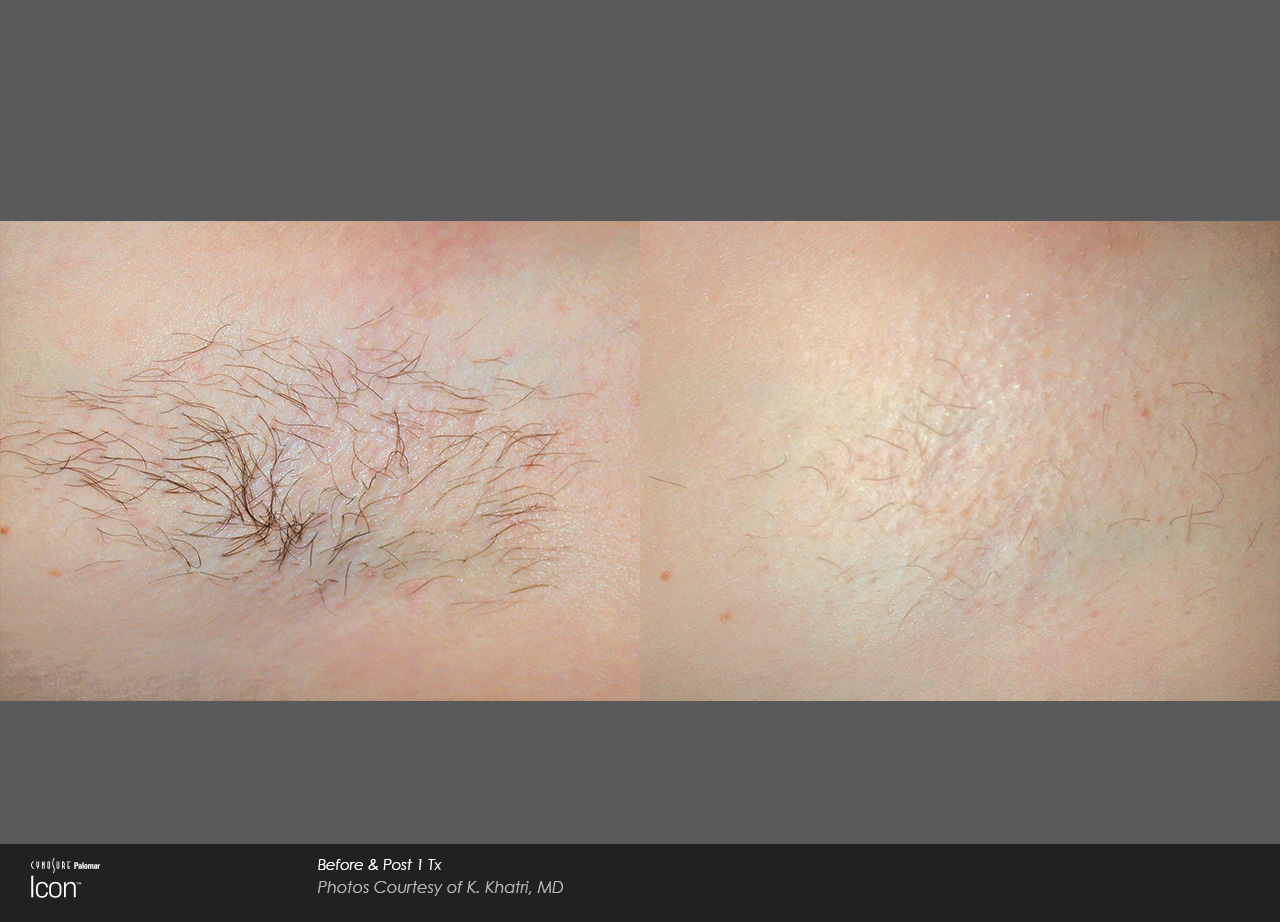 Laser hair removal med spa holliston ma why choose laser hair removal solutioingenieria Choice Image